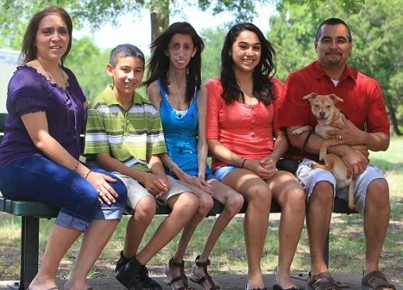 Lizzie Velasquez with Family