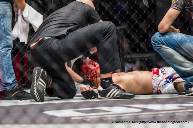 Chen Yun Ting knocked out by 20 year old Gianni Subba in Round 1. Ineluctable referee interruption was executed after Subba kept slamming Chen with fatal elbows.